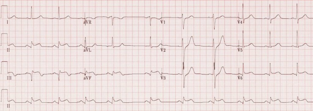 ECG Recent inferolateral STEMI