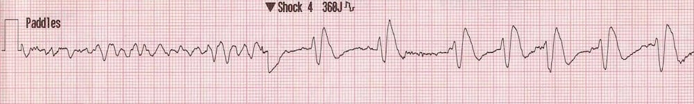 ECG Rhythm strip post DCCV cardioversion