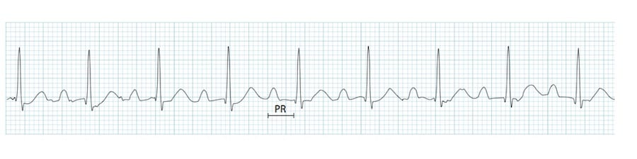 ECG Rhythm strip PR interval prolonged 1st degree AV block