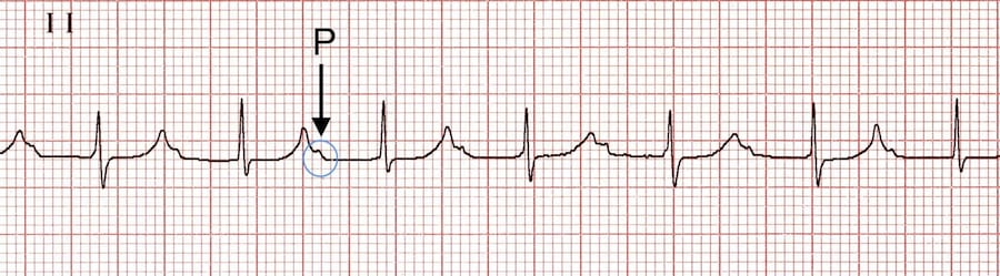 ECG Rhythm strip PR interval prolonged extreme 1st degree AV block