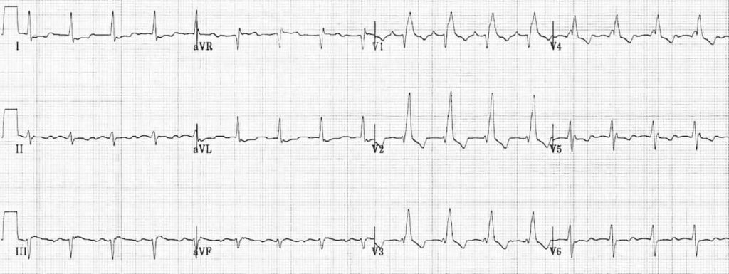 ECG Right Bundle Branch Block RBBB 2