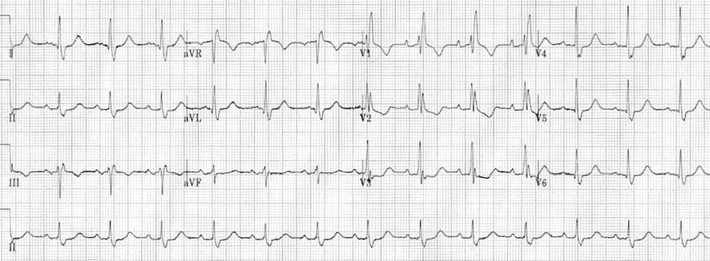 ECG Right Bundle Branch Block RBBB 5