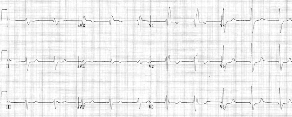 ECG Right Bundle Branch Block RBBB 6