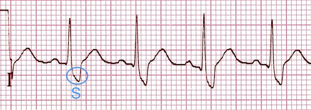 ECG Right Bundle Branch Block RBBB Lead I wide S