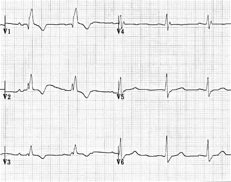 ECG Right Bundle Branch Block RBBB T wave inversion
