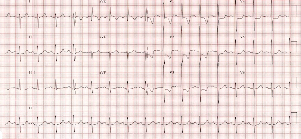 ECG Right ventricular hypertrophy RVH