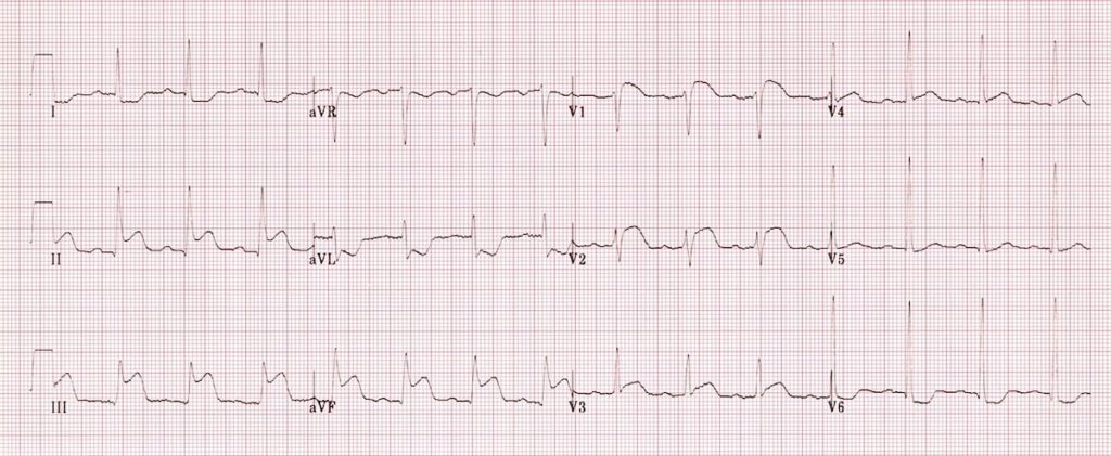 ECG Right ventricular infarction 1