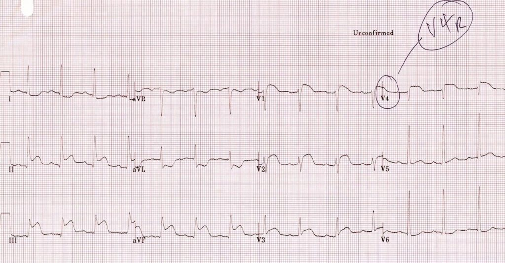 ECG Right ventricular infarction 1b V4R