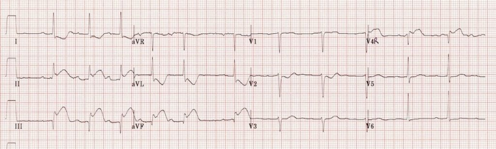 ECG Right ventricular infarction 2