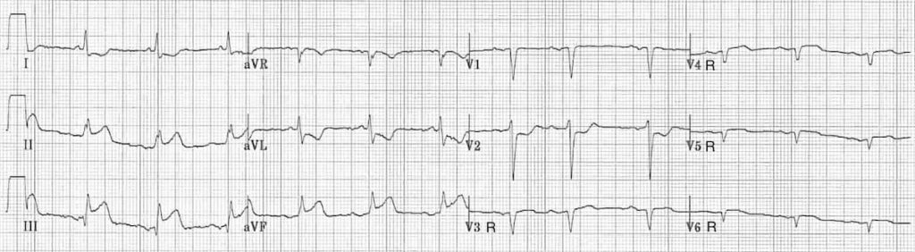ECG Right ventricular infarction 3 Right sided leads