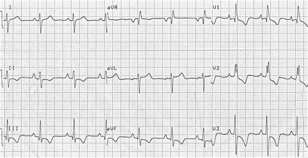ECG Right ventricular hypertrophy RVH 2