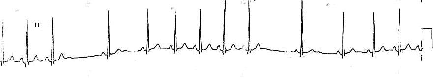 ECG SA Block type 1