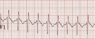 ECG SVT Pediatric RSR pattern V1