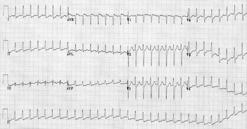 ECG SVT-ST-depression 2