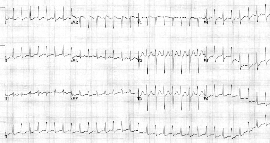 ECG SVT with ST depression