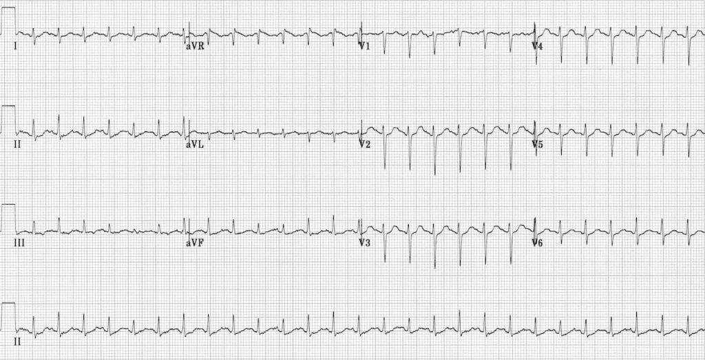 ECG Sinus Tachycardia