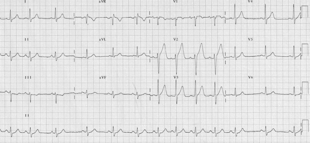 ECG Sinus arrhythmia 12 lead