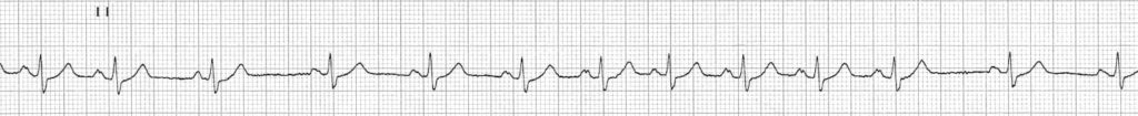 ECG Sinus arrhythmia lead II