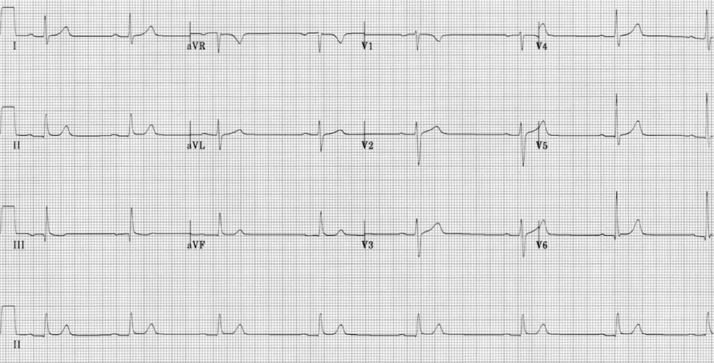 ECG Sinus bradycardia 1st degree AV block