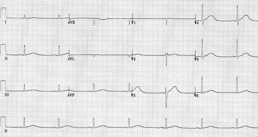 ECG Sinus braycardia prolonged QT sotalol OD
