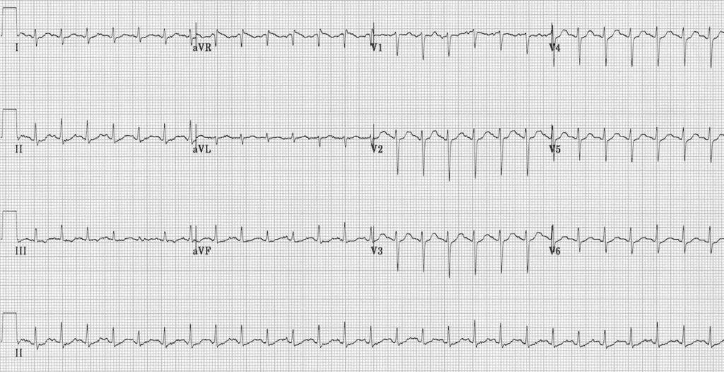 ECG Sinus tachycardia 1