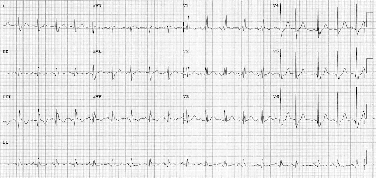 ECG-Sinus-tachycardia-RBBB 1200