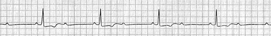 ECG Strip 2 to 1 AV Block
