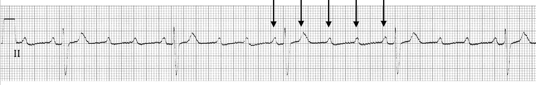 ECG Strip 4 to 1 AV block