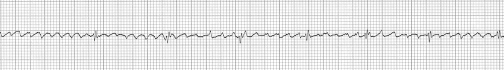 ECG Strip Flutter waves adenosine 2