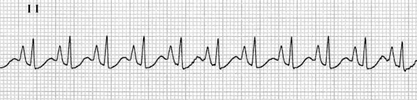 ECG-Strip-P-Pulmonale-Right-Atrial-Hypertrophy-3