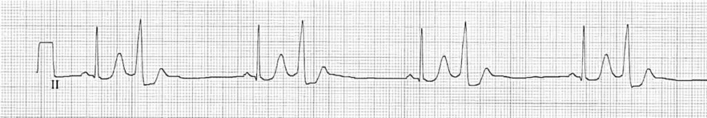 ECG Strip QRS narrow and wide