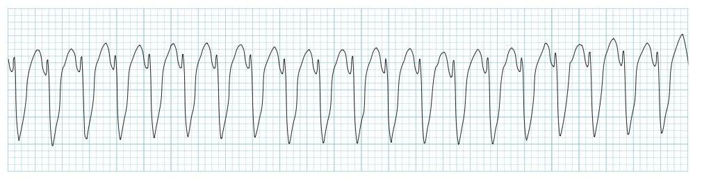 ECG Strip Ventricular tachycardia VT