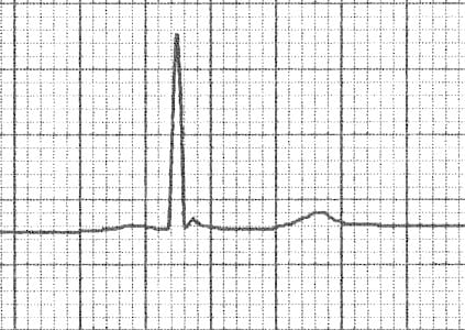ECG Subtle Osborn wave J wave hypothermia