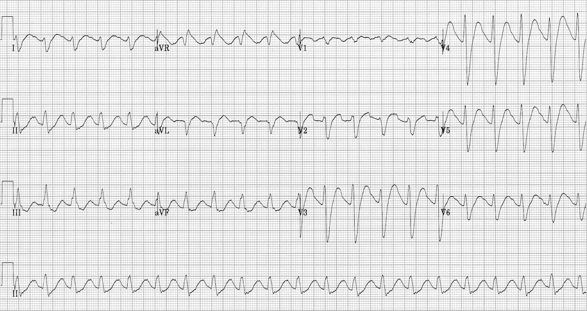 Tricyclic Overdose • LITFL Medical blog • ECG Library