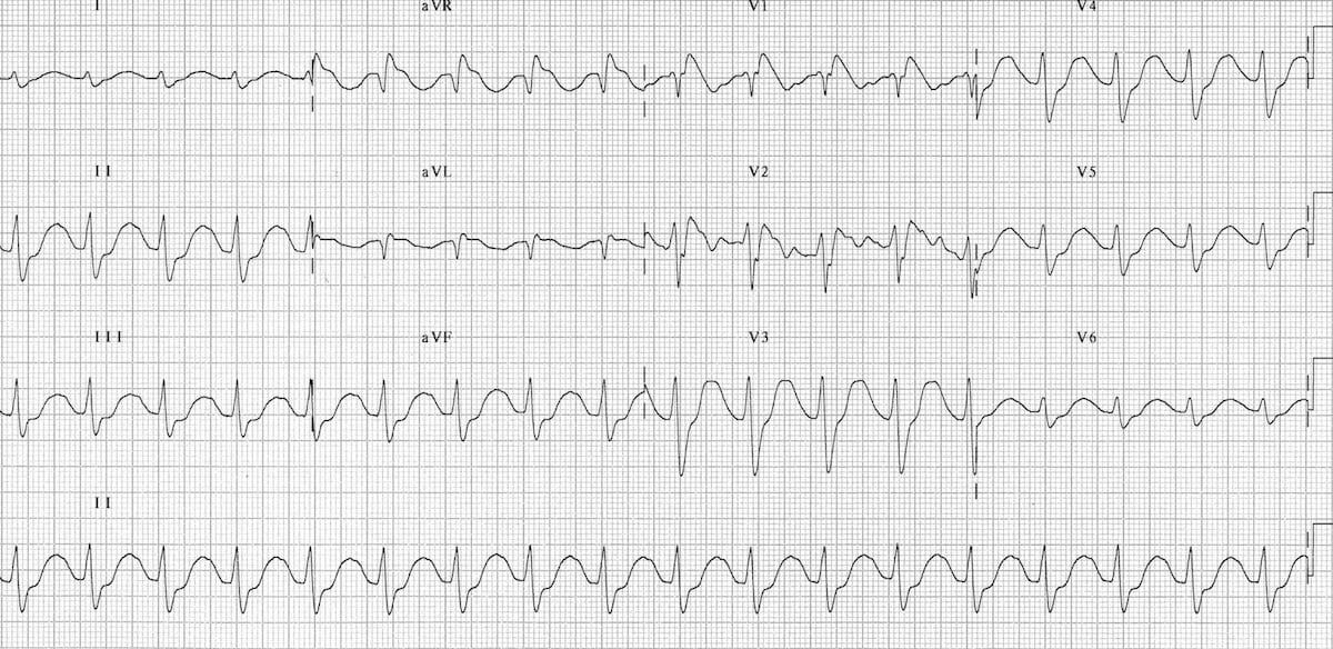 Tricyclic Overdose • LITFL Medical blog • ECG Library