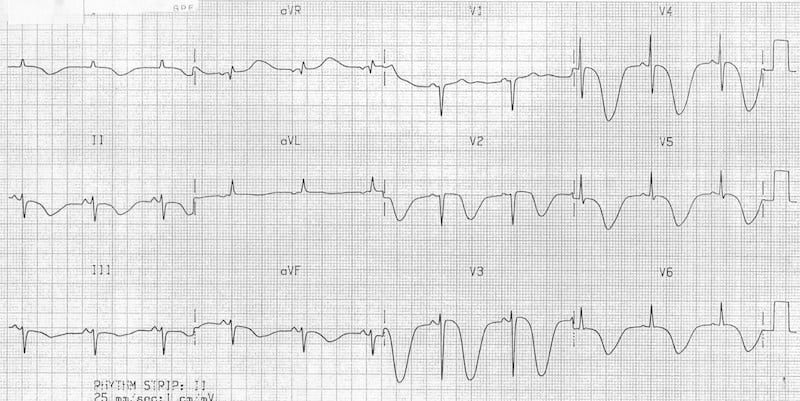 ECG TWI Raised intracranial pressure (ICP) SAH
