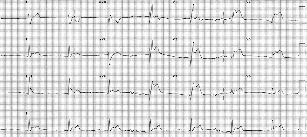 ECG Tako-Tsubo Cardiomyopathy