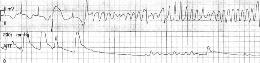 ECG Torsades des pointes tdp 2