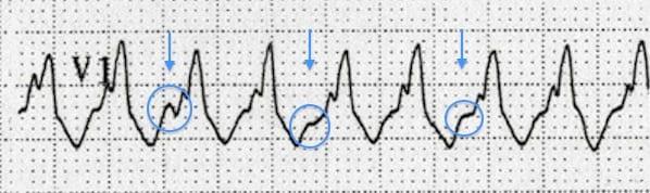 ECG VT AV dissociation
