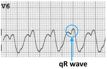 ECG VT LBBB V6 qR wave
