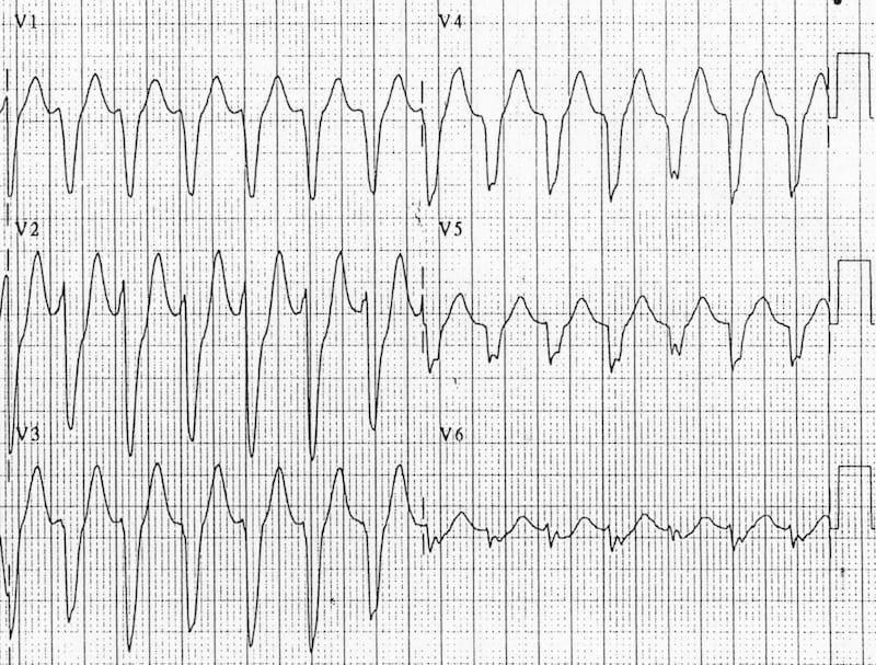 ECG VT Negative precordial concordance 2