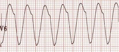 ECG VT RBBB QS-wave-V6-RBBB-VT
