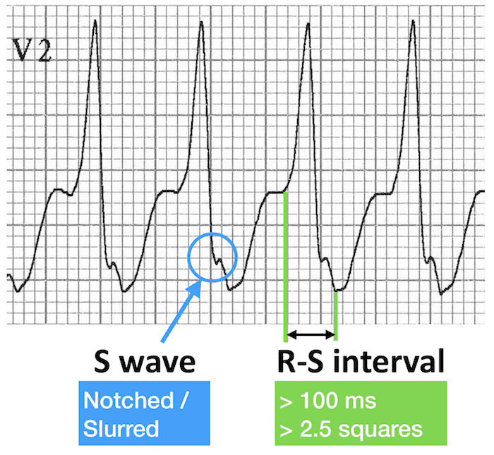 ECG VT V2 RS interval RBBB morphology 700
