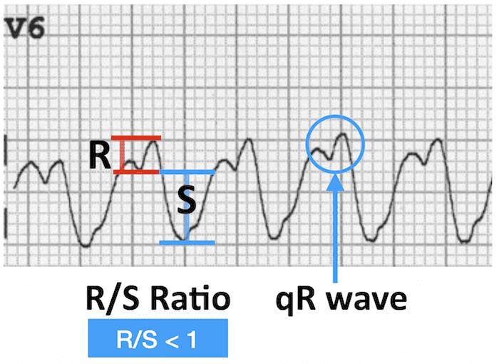 ECG VT V6 qR wave LBBB morphology 700