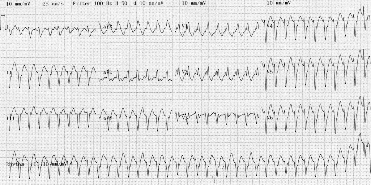 ECG Ventricualr tachycardia Monomorphic VT