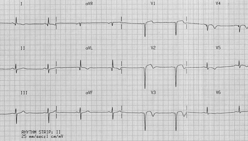 ECG Ventricular Aneurysm
