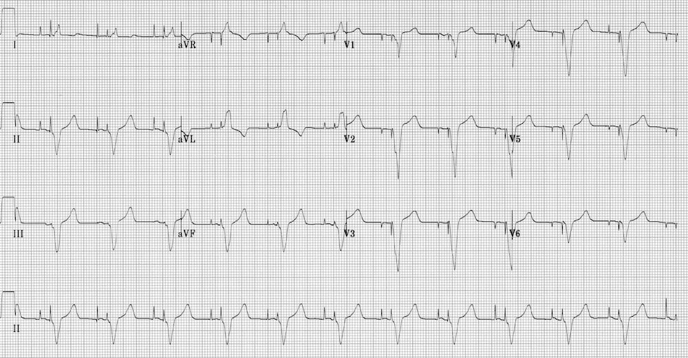 ECG Ventricular Paced Rhythm AV sequential pacing