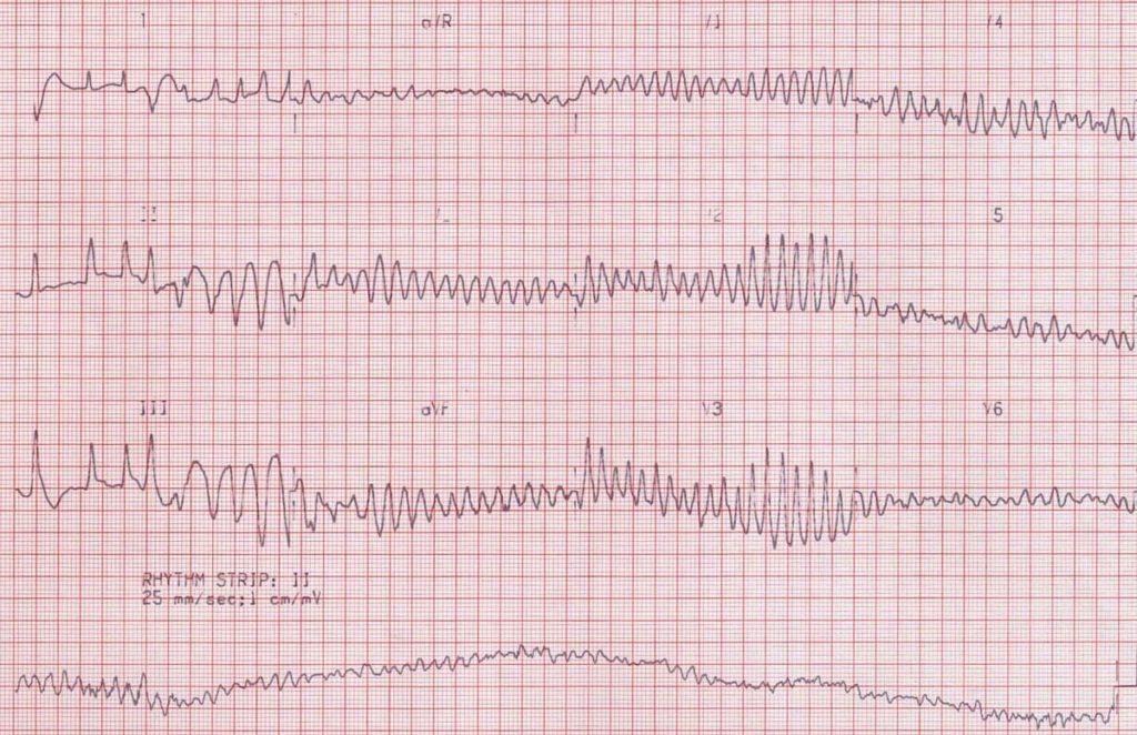 ECG-Ventricular-fibrillation-VF original VF VT