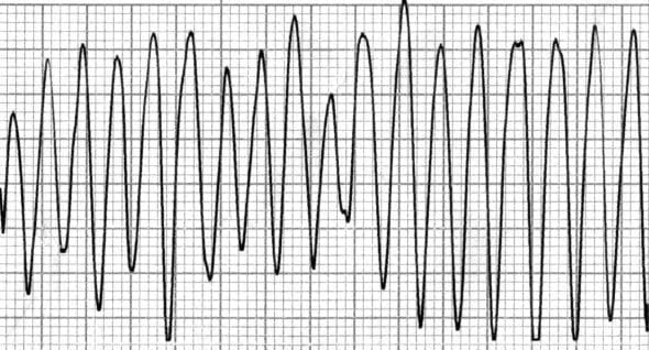 ECG Ventricular flutter