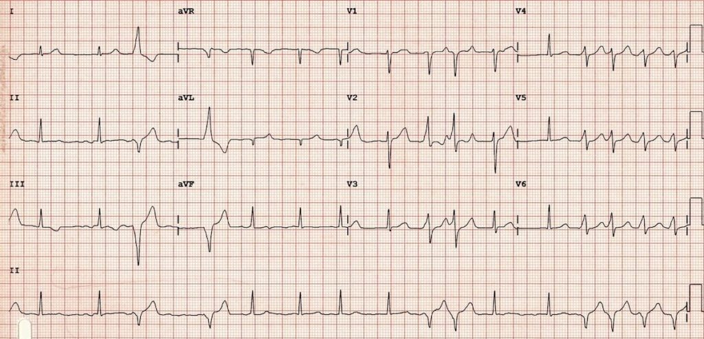 ECG WPW with intermittent pre-excitation